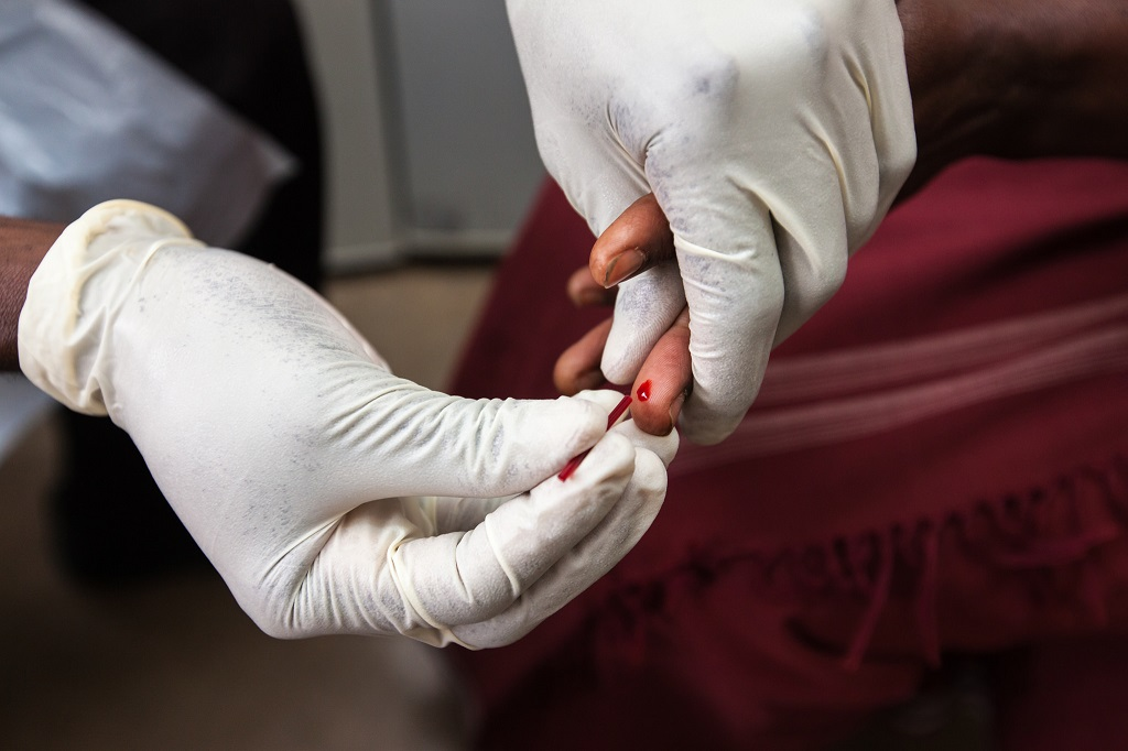 Finger prick to test for HIV